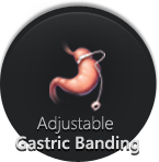 Adjustable Gastric  Banding - Monmouth Surgical Specialists