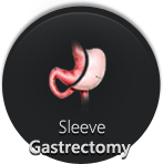 Sleeve Gastrectomy - Monmouth Surgical Specialists