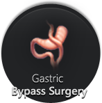 Gastric Bypass Surgery - Monmouth Surgical Specialists